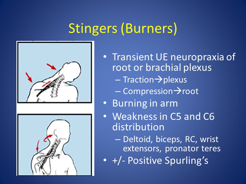 Stingers (Burners) Transient UE neuropraxia of root or brachial plexus