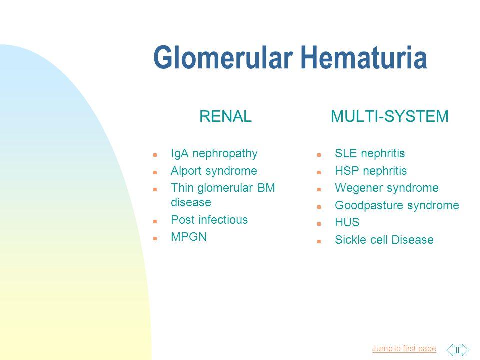 Glomerular Hematuria RENAL MULTI-SYSTEM IgA nephropathy