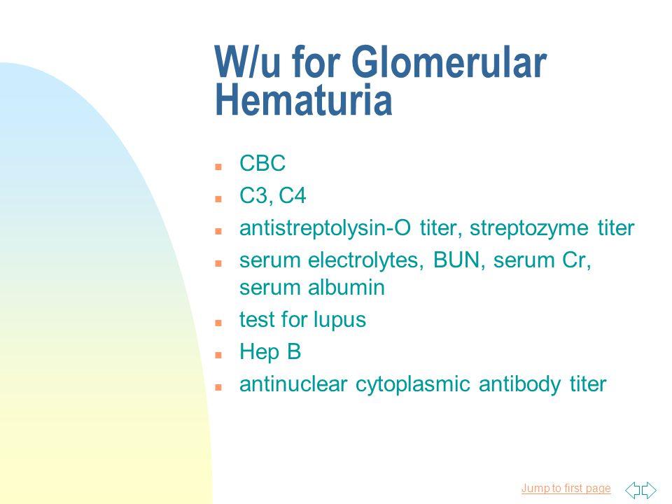 W/u for Glomerular Hematuria