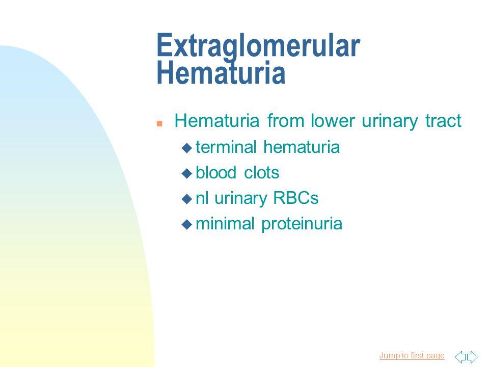 Extraglomerular Hematuria