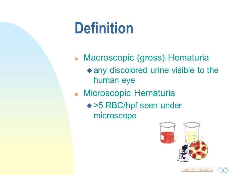 Definition Macroscopic (gross) Hematuria Microscopic Hematuria