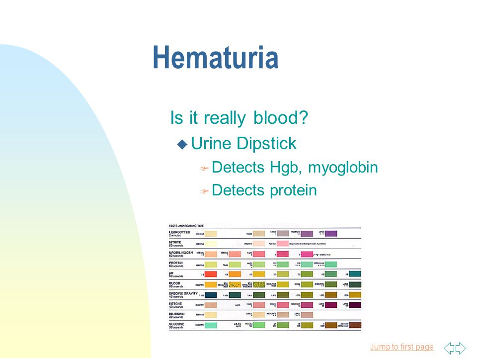 Hematuria Is it really blood Urine Dipstick Detects Hgb, myoglobin