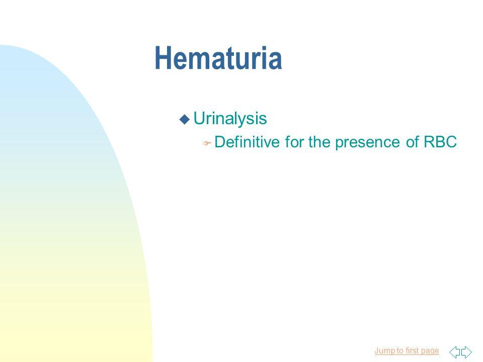 4/11/2017 Hematuria Urinalysis Definitive for the presence of RBC