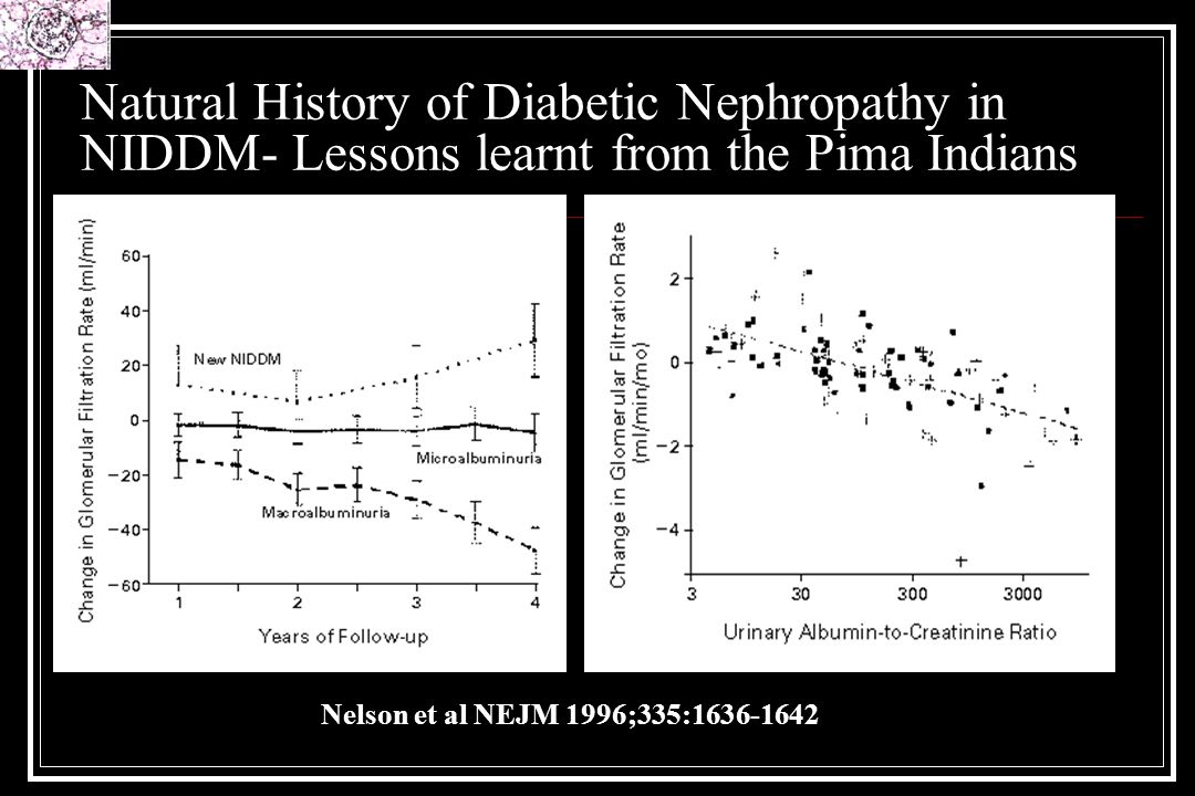 Natural History of Diabetic Nephropathy in NIDDM- Lessons learnt from the Pima Indians