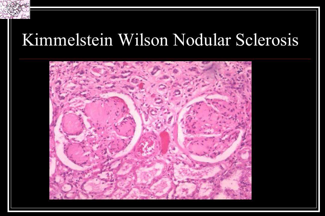Kimmelstein Wilson Nodular Sclerosis