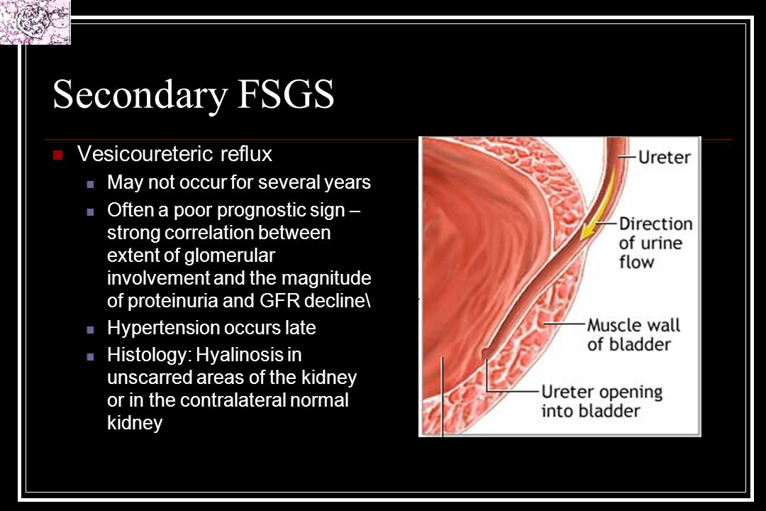 Secondary FSGS Vesicoureteric reflux May not occur for several years