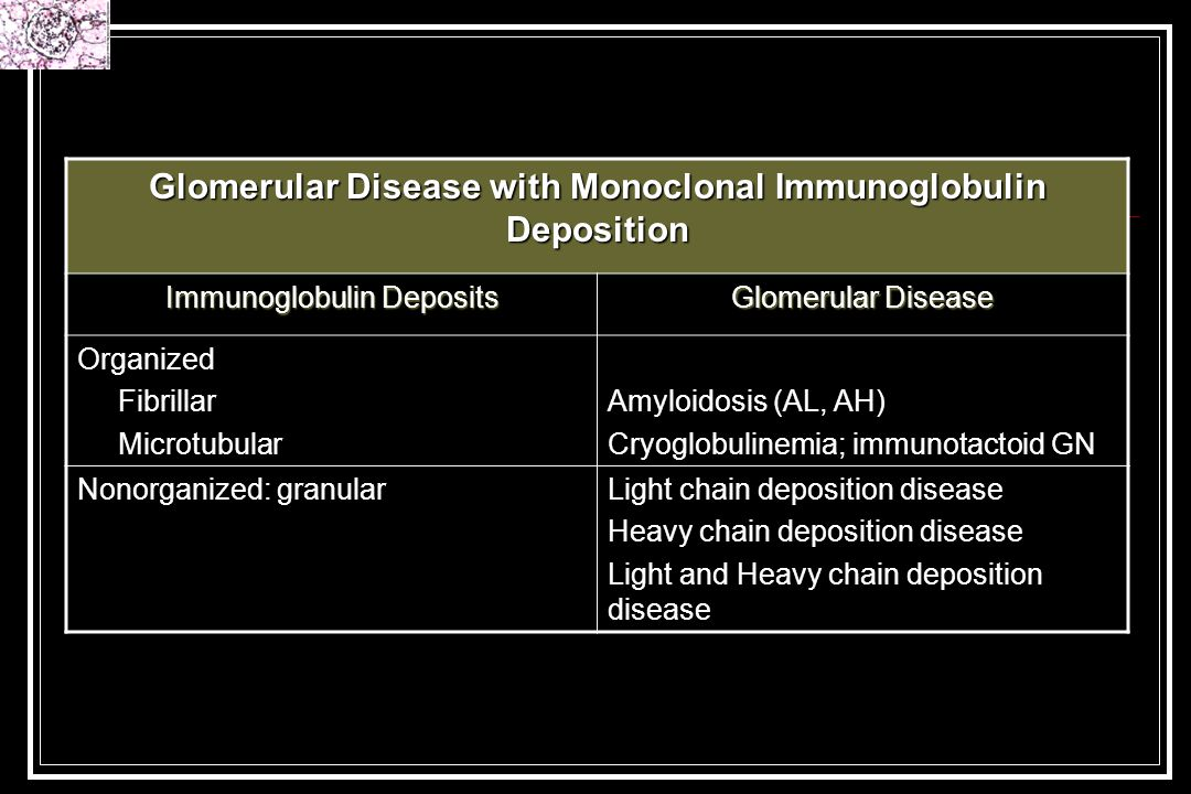 Glomerular Disease with Monoclonal Immunoglobulin Deposition