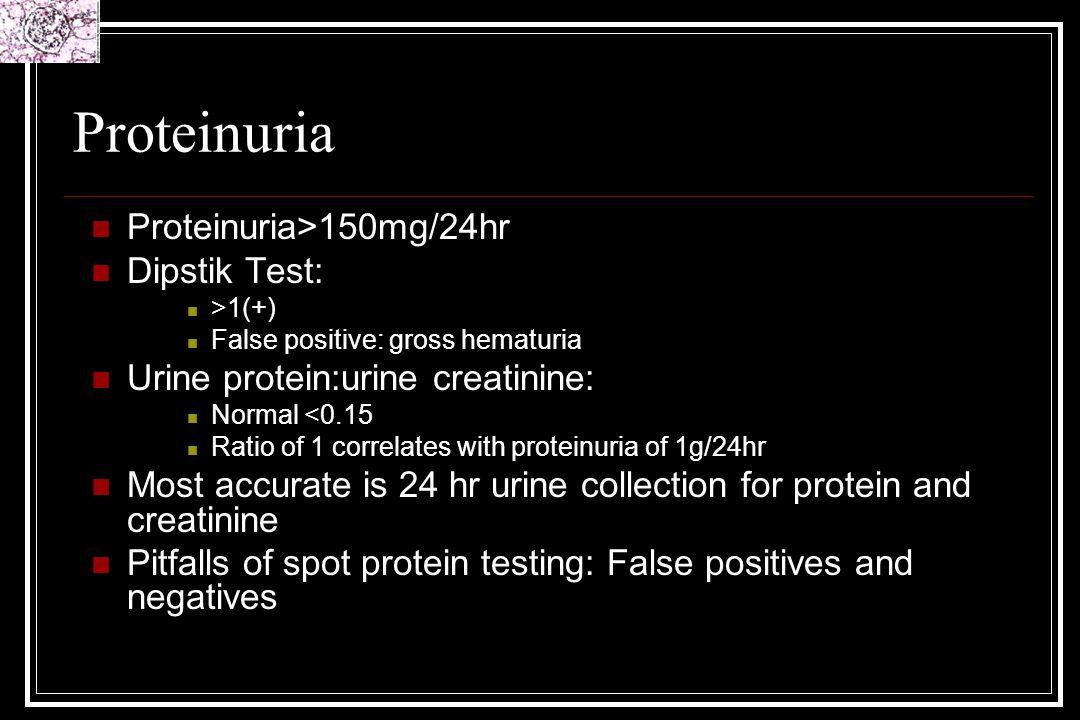Proteinuria Proteinuria>150mg/24hr Dipstik Test: