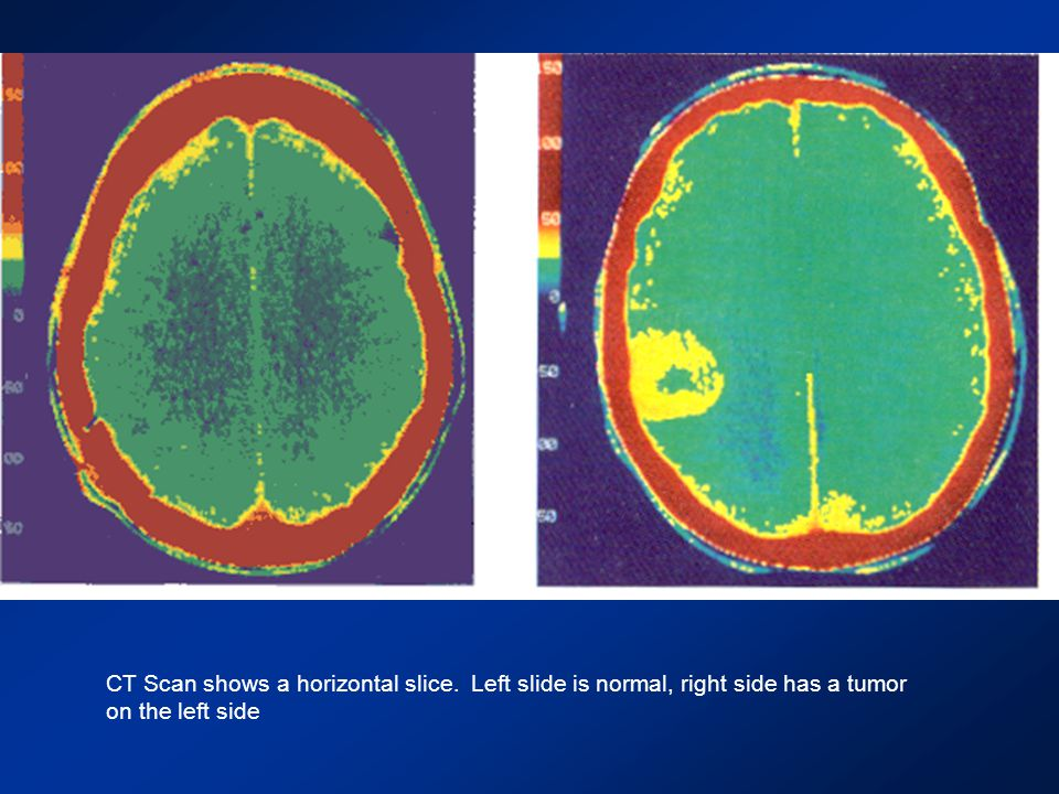 CT Scan shows a horizontal slice