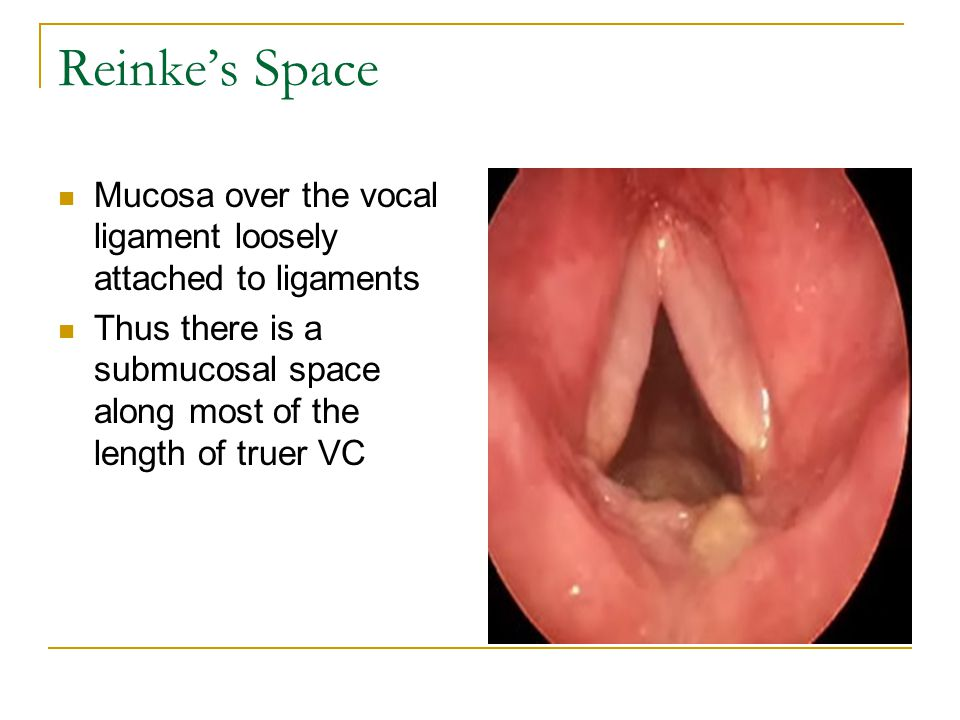 Reinke's Space Mucosa over the vocal ligament loosely attached to ligaments.