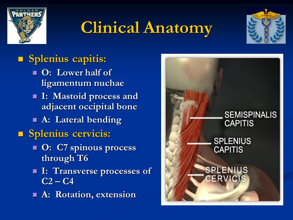 Clinical Anatomy Splenius capitis: Splenius cervicis: