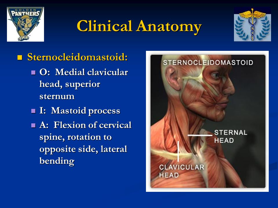 Clinical Anatomy Sternocleidomastoid: