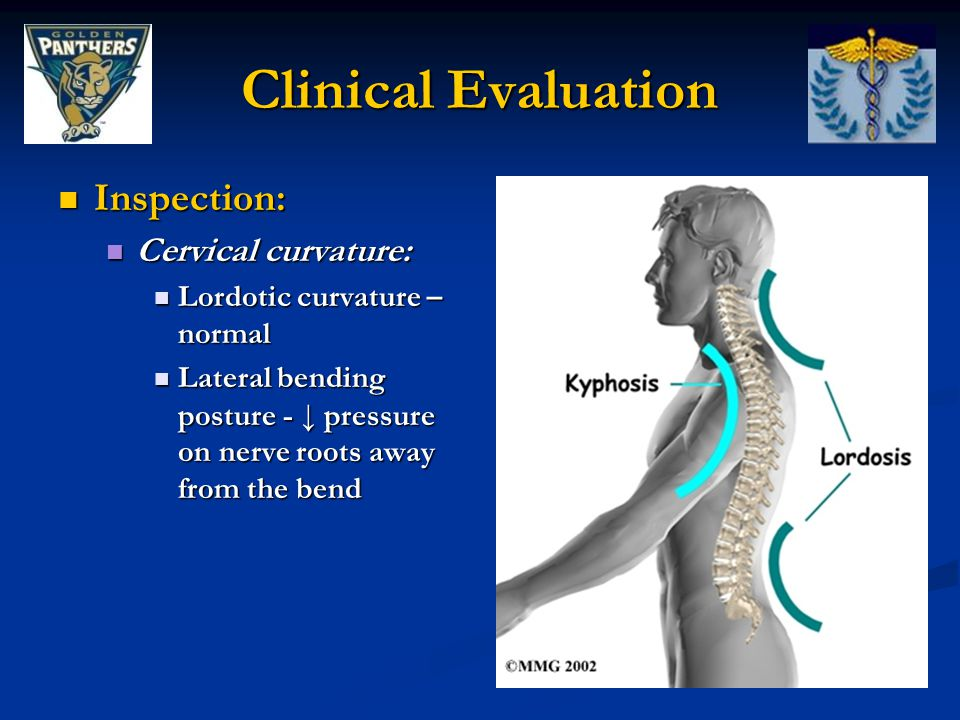 Clinical Evaluation Inspection: Cervical curvature: