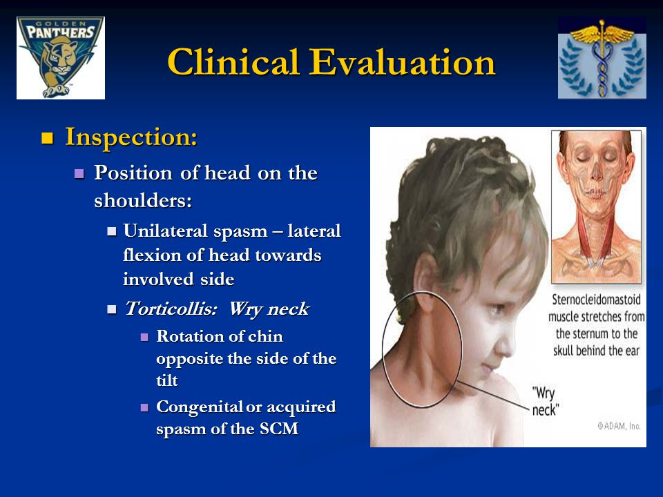 Clinical Evaluation Inspection: Position of head on the shoulders: