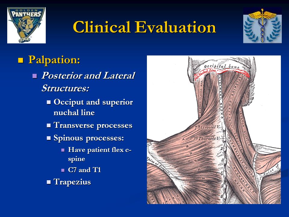 Clinical Evaluation Palpation: Posterior and Lateral Structures: