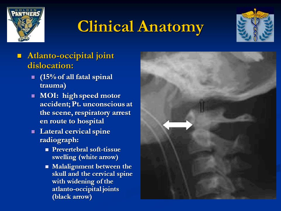 Clinical Anatomy Atlanto-occipital joint dislocation: