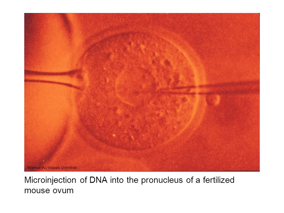 Microinjection of DNA into the pronucleus of a fertilized mouse ovum