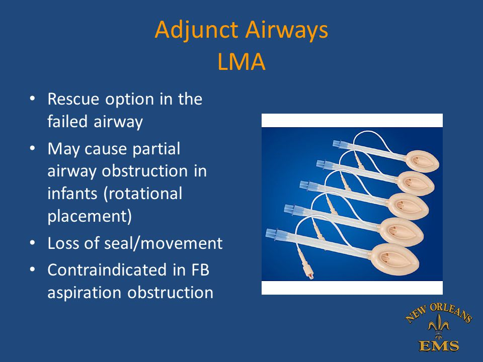 Adjunct Airways LMA Rescue option in the failed airway