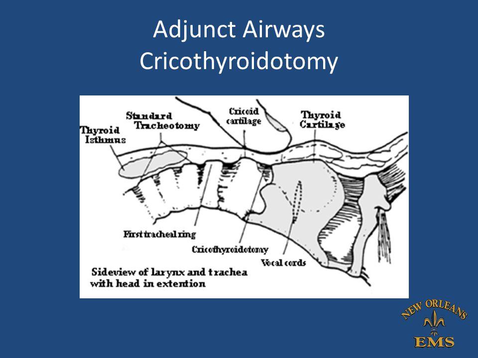 Adjunct Airways Cricothyroidotomy