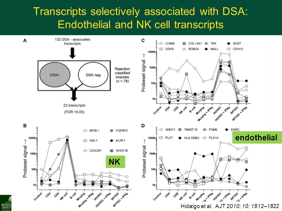 Transcripts selectively associated with DSA: Endothelial and NK cell transcripts