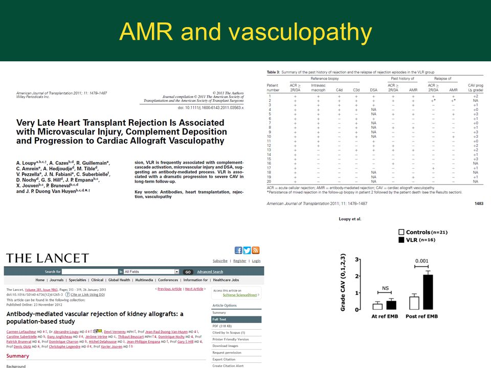 AMR and vasculopathy