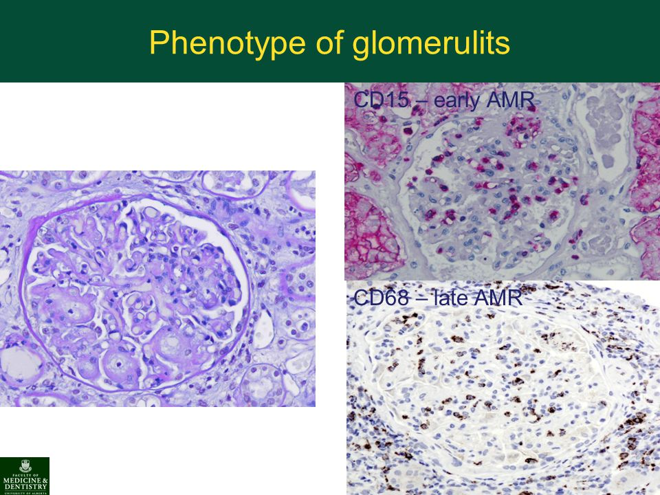 Phenotype of glomerulits