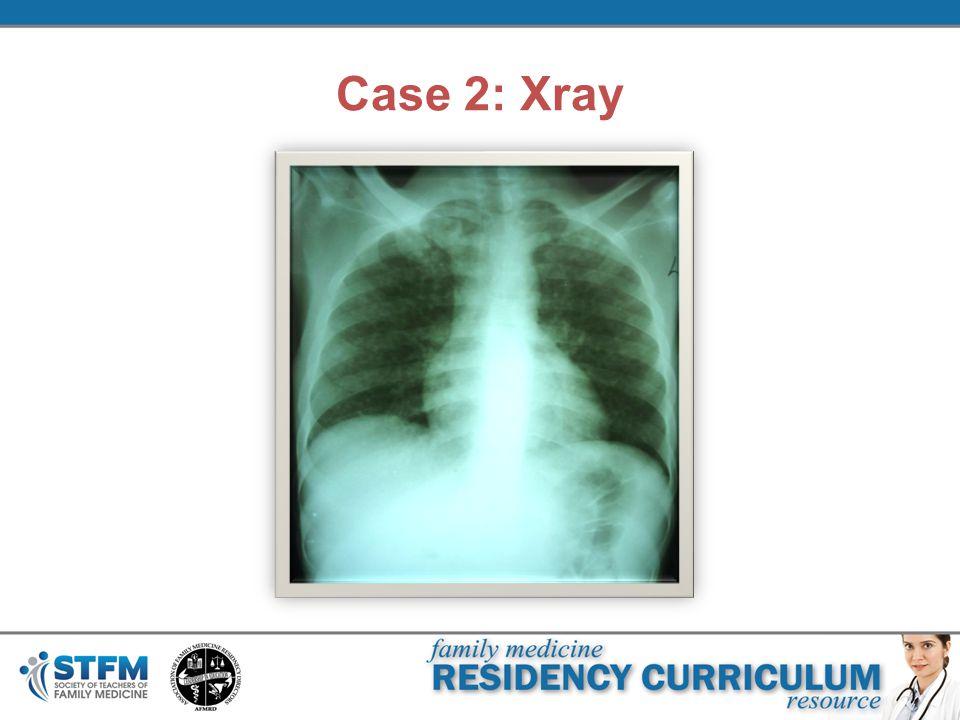 Case 2: Xray