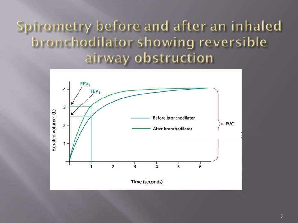 Spirometry before and after an inhaled bronchodilator showing reversible airway obstruction