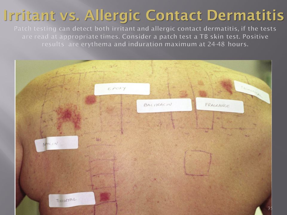 Irritant vs. Allergic Contact Dermatitis