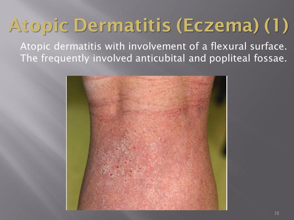 Atopic Dermatitis (Eczema) (1)
