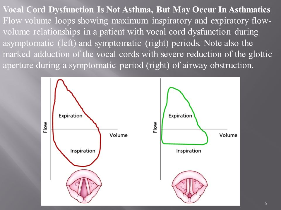Vocal Cord Dysfunction Is Not Asthma, But May Occur In Asthmatics