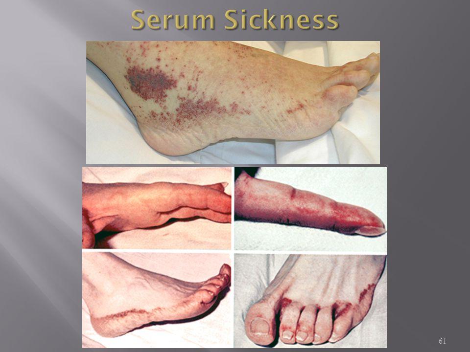 Serum Sickness MKSAP: