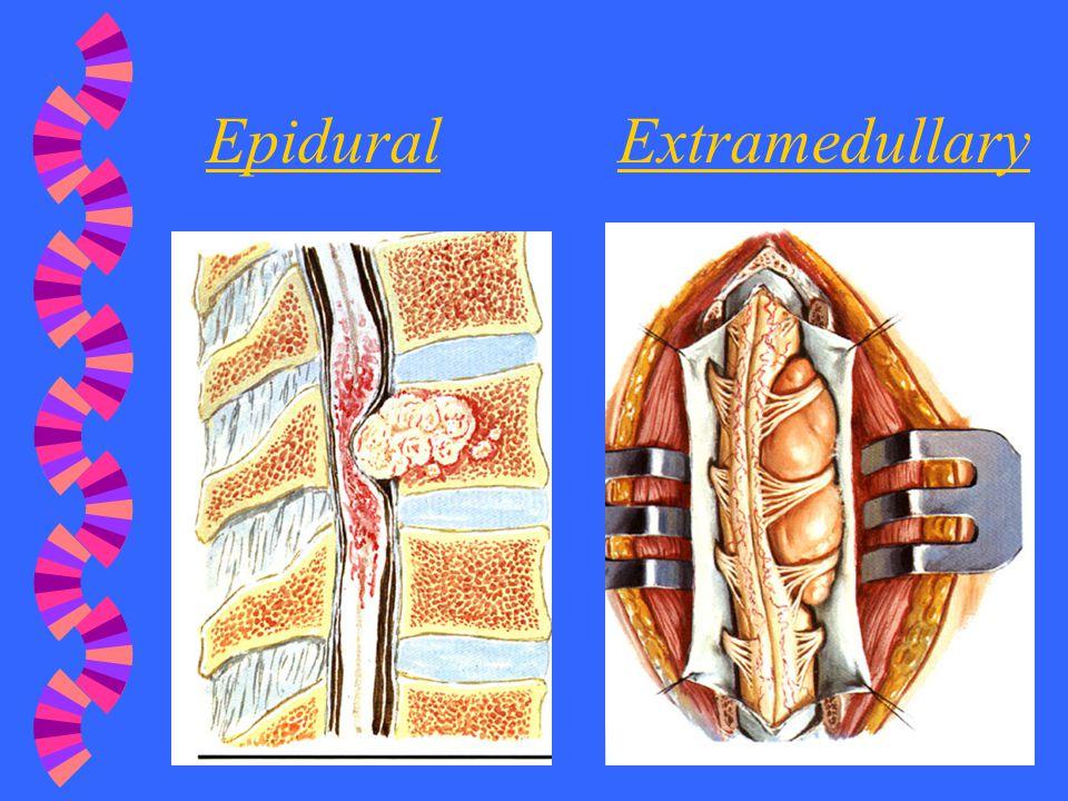 Epidural Extramedullary
