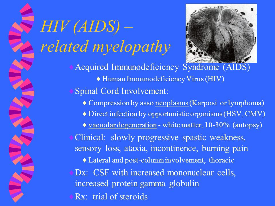 HIV (AIDS) – related myelopathy