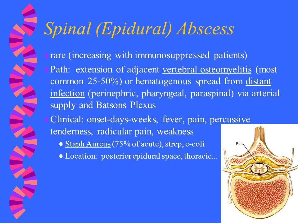 Spinal (Epidural) Abscess