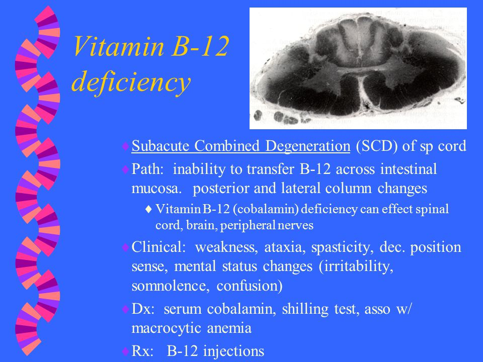 Nontraumatic Spinal Cord Injury (NT/SCI) - ppt video ... B12 Deficiency Spinal Cord