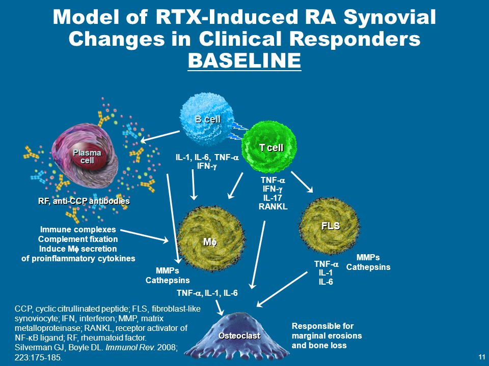 of proinflammatory cytokines RF, anti-CCP antibodies