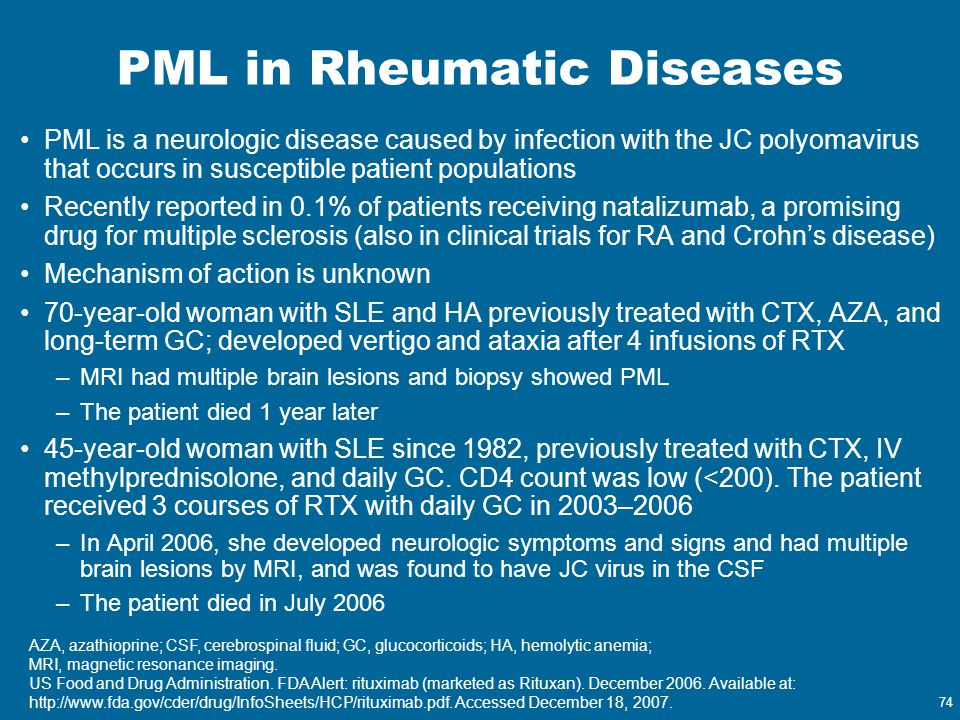 PML in Rheumatic Diseases