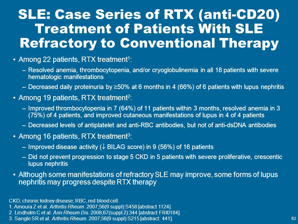 SLE: Case Series of RTX (anti-CD20) Treatment of Patients With SLE Refractory to Conventional Therapy