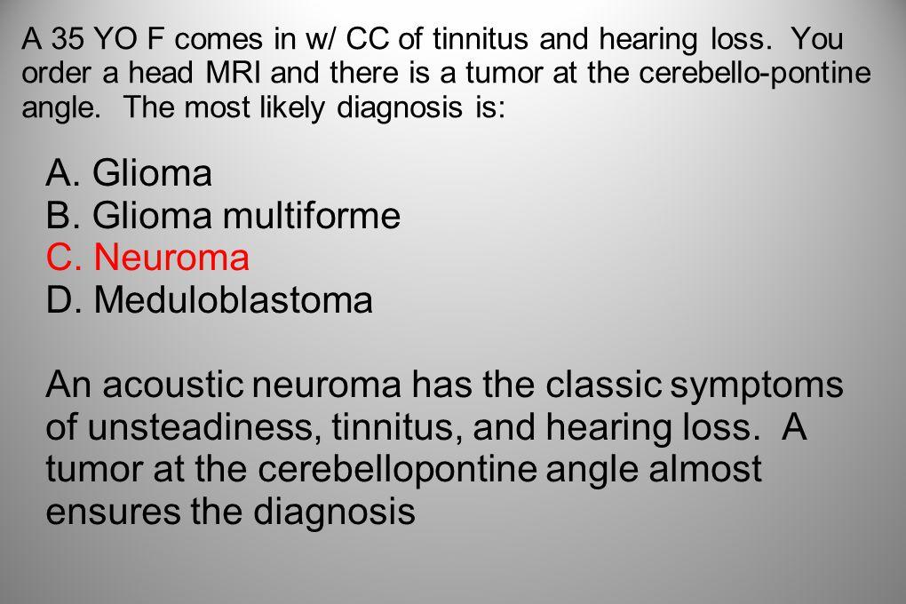 A. Glioma B. Glioma multiforme C. Neuroma D. Meduloblastoma