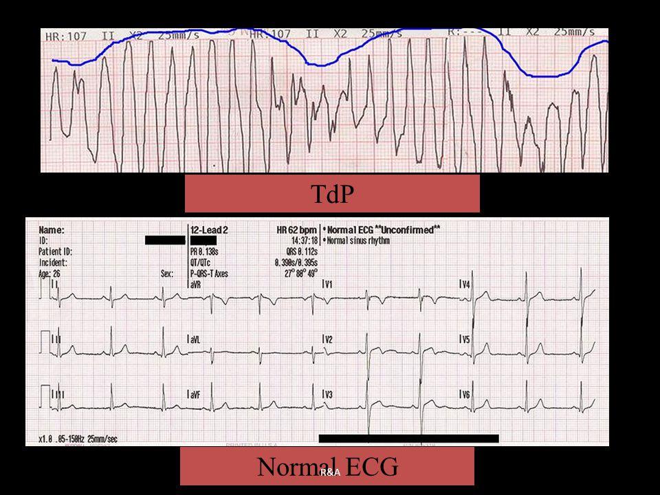 TdP Normal ECG R&A