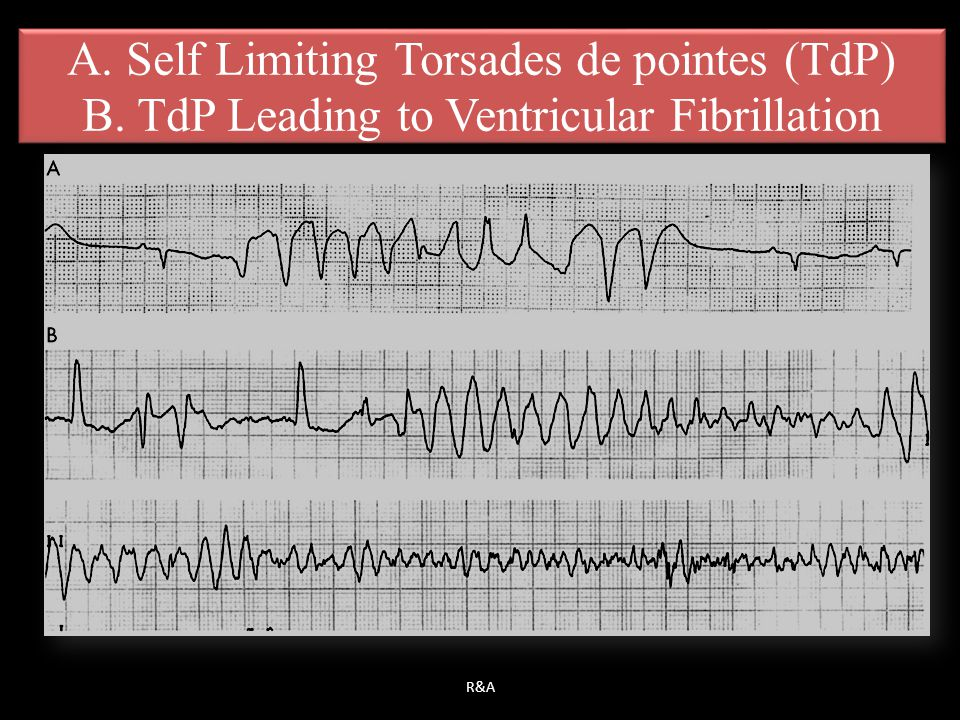 A. Self Limiting Torsades de pointes (TdP)