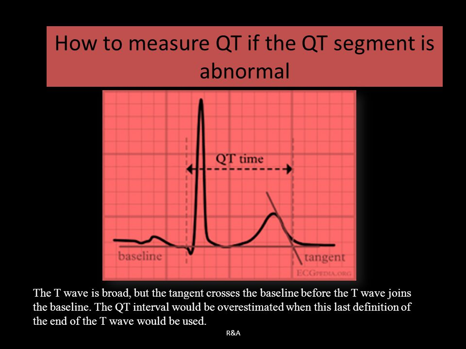 How to measure QT if the QT segment is abnormal