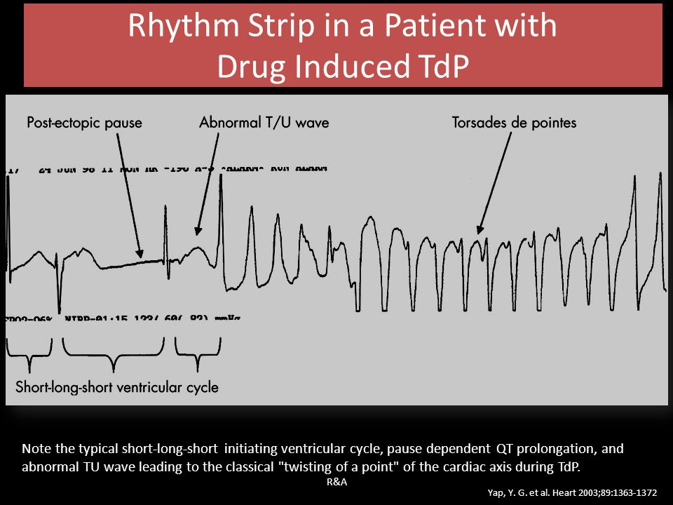 Rhythm Strip in a Patient with