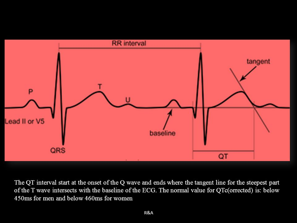 The QT interval start at the onset of the Q wave and ends where the tangent line for the steepest part of the T wave intersects with the baseline of the ECG. The normal value for QTc(orrected) is: below 450ms for men and below 460ms for women