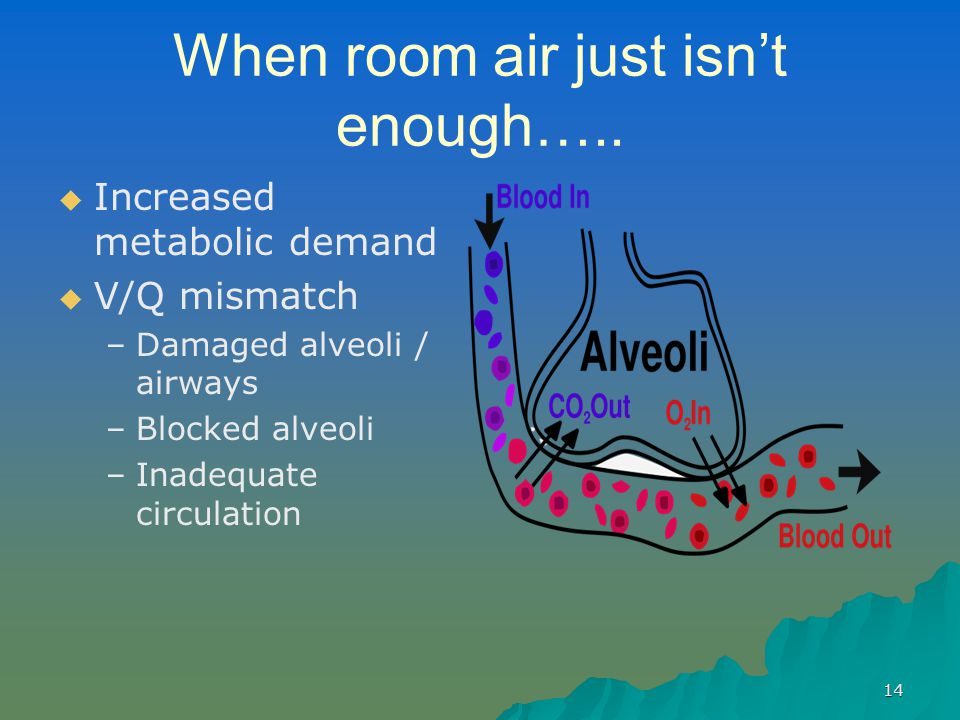 When room air just isn't enough…..