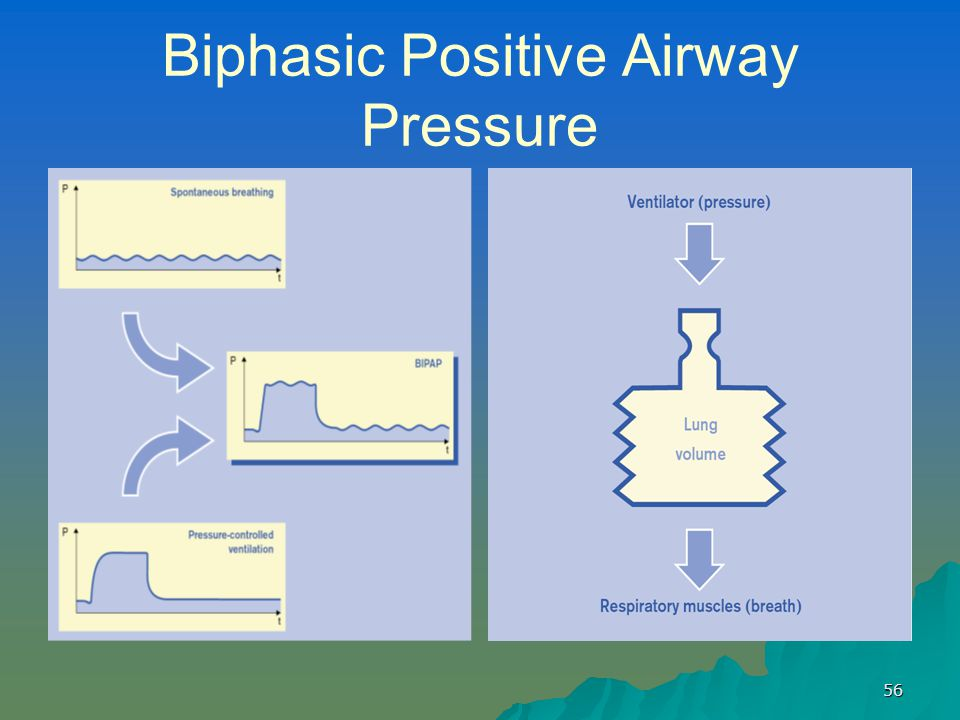 Biphasic Positive Airway Pressure