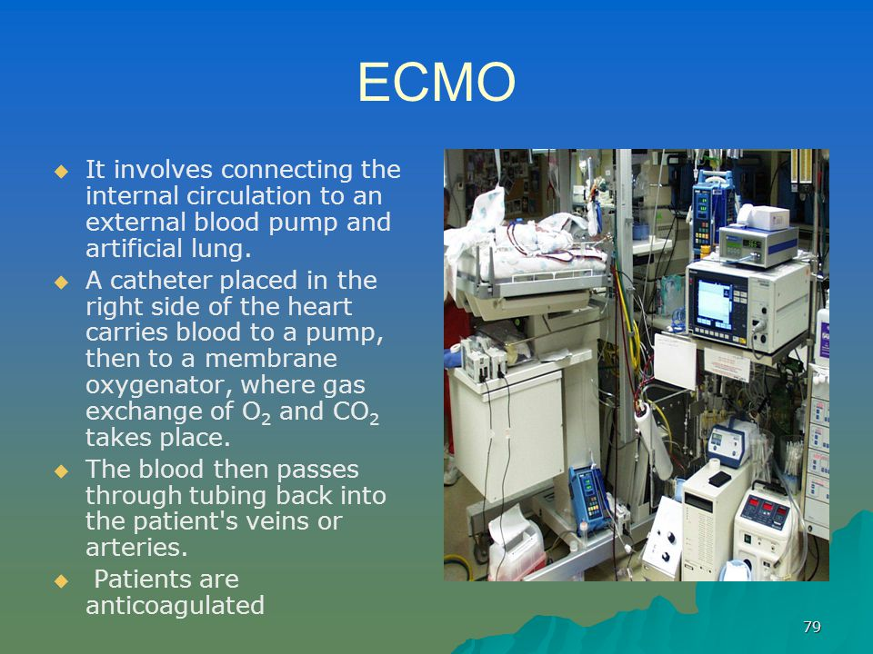 ECMO It involves connecting the internal circulation to an external blood pump and artificial lung.