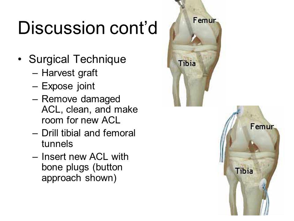 Discussion cont'd Surgical Technique Harvest graft Expose joint