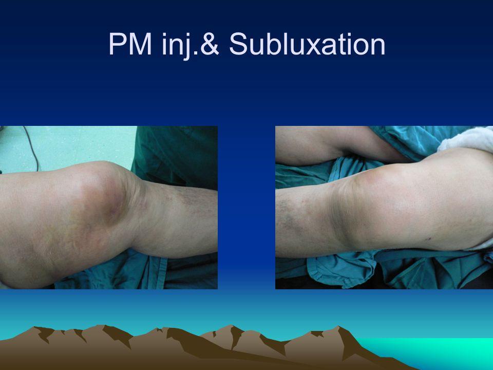 PM inj.& Subluxation